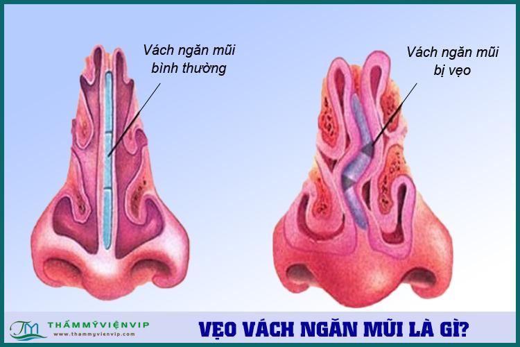 Vẹo vách ngăn ở mũi là gì? Các triệu chúng vẹo vách ngăn mũi